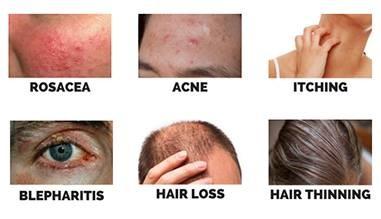 Demodex skin issues